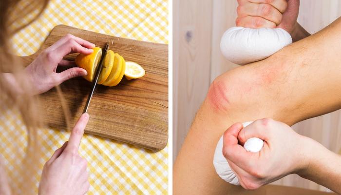 лимон лечит боль в колене и суставах